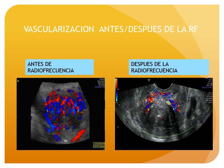 Vascularizacion de miomas