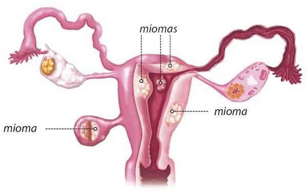 Embolizacion de Miomas Uterinos